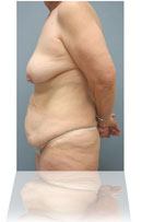 Body Contouring after massive Weight Loss
